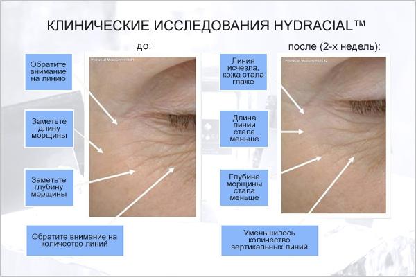Клинические исследования анитвозрасной системы по уходу за кожей Hydracial